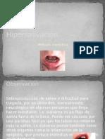 Hipersalivación