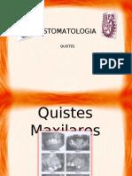 Quistes Maxilares
