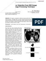 Lung Cancer detection using Matlab