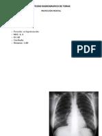 Estudio Radiografico de Torax