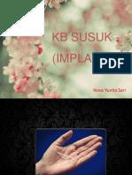 Kb Susuk (Implant)