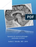 Apuntes de neurorradiologia