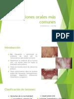 Lesiones orales comunes