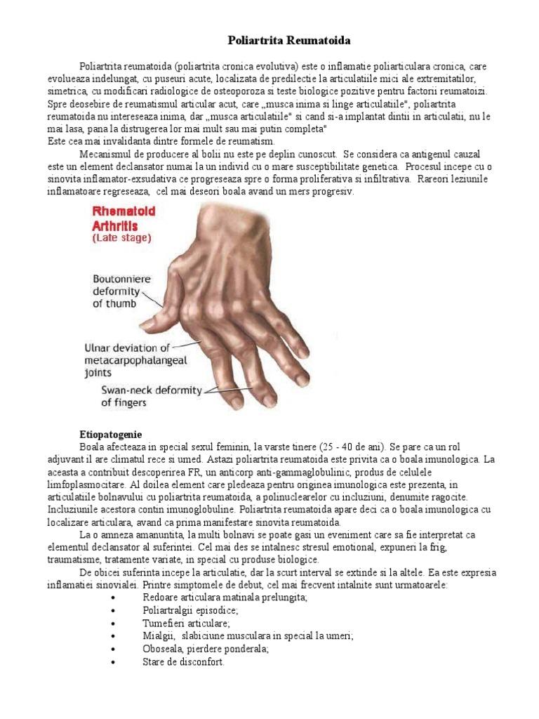 medicamente de rating pentru articulații și ligamente