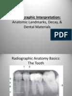 Radiographic Interpretation PPOINT