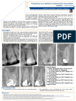 Pulpotomy as a definitive treatment for irreversible