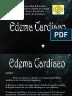 Edema Cardíaco