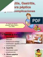 Esofagitis, Gastritis, Úlcera péptica y sus complicaciones natita
