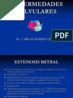 ENFERMEDADES VALVULARES.ppt