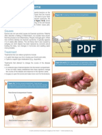 DeQervain_tendonitis.pdf