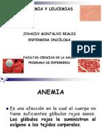Anemia y Leucemias (1)