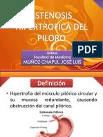 CHAPUL - Estenosis Hipertr+¦fica del P+¼loro - copia