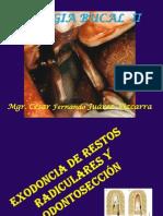 1 Exodoncia de Restos radiculares Complejas y Odontosección