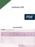 Gambaran EKG