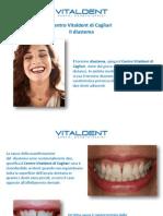 Spazio tra denti adiacenti? Il Centro Vitaldent di Cagliari spiega cos'è il diastema