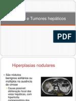 Nódulos e Tumores hepáticos