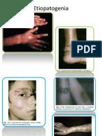 Etiopatogenia esporoticosis