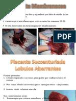 Placenta Membranacea
