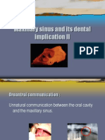Maxillary Sinus and Its Dental Implication II