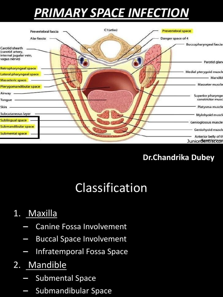 Primary Space Infection - Chandrika   Musculoskeletal System   Mouth