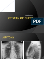 Ct Scan of Chest 2013