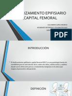 Deslizamiento Epifisiario Capital Femoral