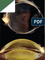 Prezentare 5_glaucom Si Cataracta