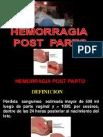 0- Hemorragia Post Parto-Pego