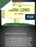 Angina Ludwig Cms'13
