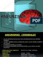 Aneurism A