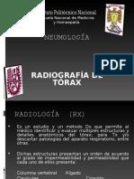RADIOLOGÍA DE TORAX