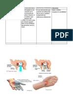 Neurolisis Del Tunel Del Carpo