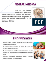 craneofaringioma.pptx