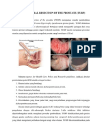 TRANSURETHRAL RESECTION OF THE PROSTATE.docx