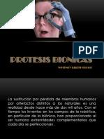 PROTESIS BIONICAS.pptx