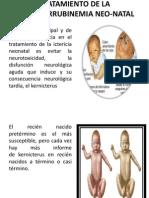 TRATAMIENTO DE LA HIPERBILIRRUBINEMIA NEO-NATal.pptx