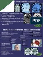 Anestesia en Tumores Supratentoriales