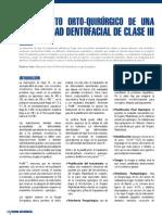 14 Tratamiento Orto Quirurgico de Una Deformidad Dentofacial de Clase Iii2