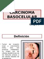 150045136 Carcinoma Basocelular FIN