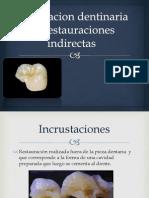 Preparacion Dentinaria de Restauraciones Indirectas