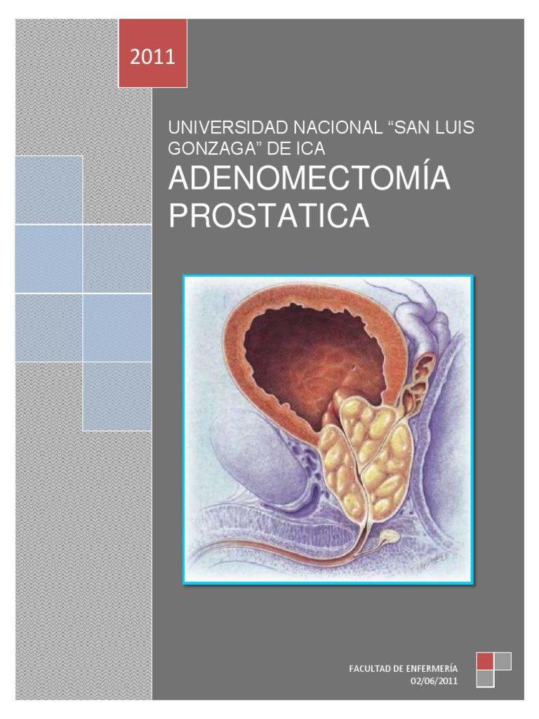 cirugía abierta de adenoma de próstata universitariar