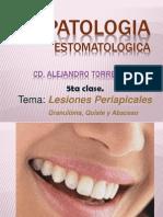 3ra Clase Lesiones Periapicales