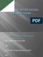 Managing Myocardial Infarctions.pptx