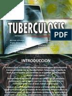 Tuberculosis Presentar
