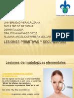 Lesiones Primitivas y Secundarias Angie