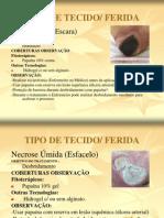 TIPO de de Feridas e Tratamentos
