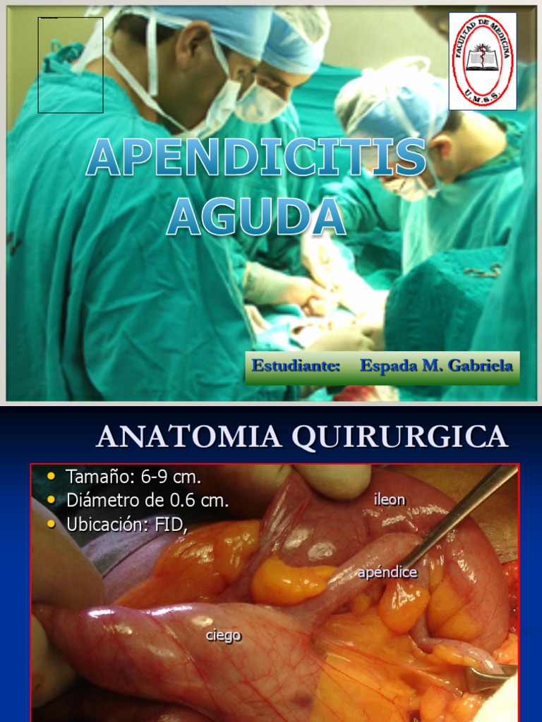 Apendicitis Aguda 09