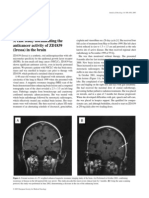 case study documenting the anticancer activity of ZD1839 (Iressa) in the brain.pdf