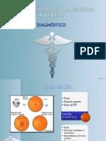 Degeneración macular diagnóstico