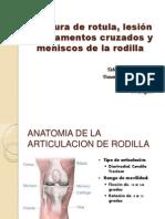 Fractura de rotula y lesión de ligamentos cruzados